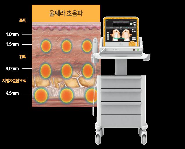 울쎄라 초음파 장비사진