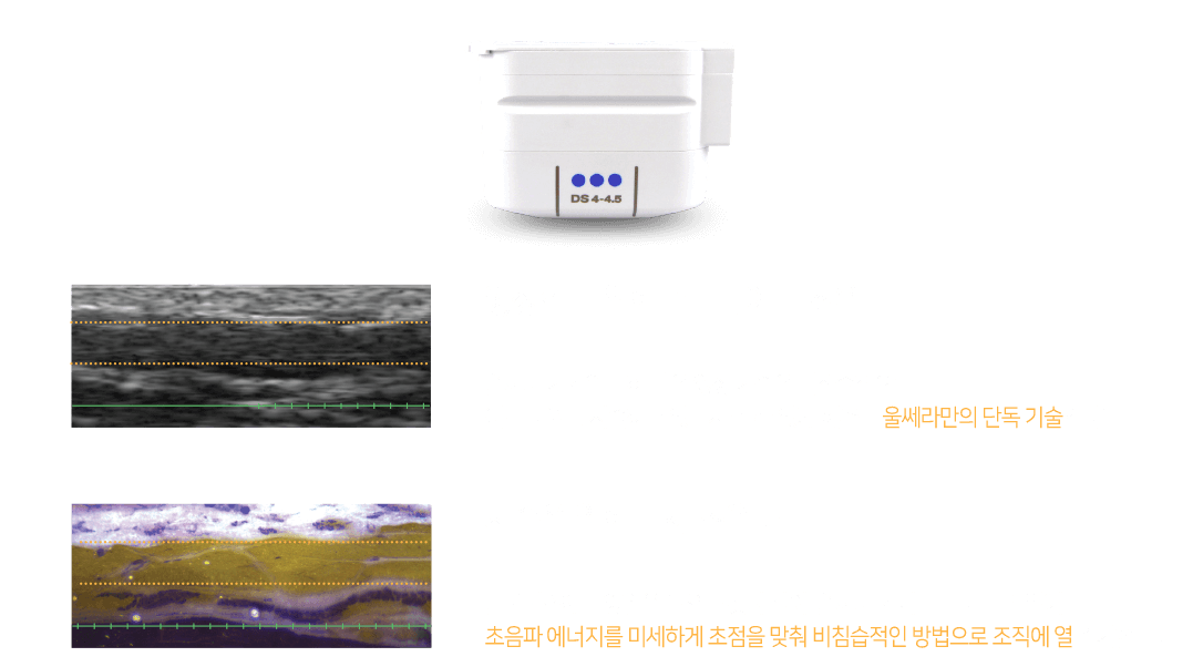 영상화를 위한 콜리메이트 초음파 울쎄라 기기의 특허 받은 영상 기술은 비침습적으로 어느 부위를 시술하고 있는지 볼 수 있게 해주는 울쎄라만의 단독 기술입니다.  시술을 위한 미세 초음파 볼록렌즈에 태양열을 모으는 것과 같이, 울쎄라 기기는 피부 표면 밑에 초음파 에너지를 미세하게 초점을 맞춰 비침습적인 방법으로 조직에 열을 가합니다.