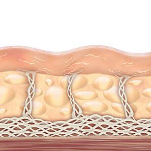 약화된 콜라겐으로 처진 피부 사진