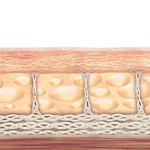 팽팽해진 피부 사진
